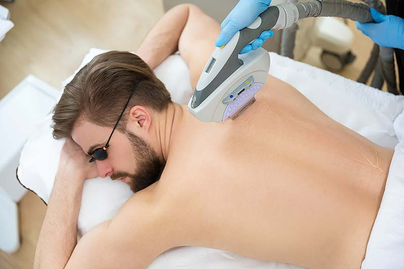 IPL hair reduction, hair removal men's back